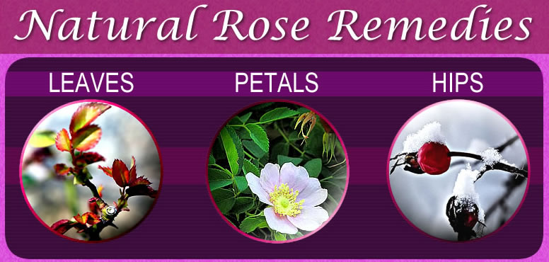 Natural rose remedies